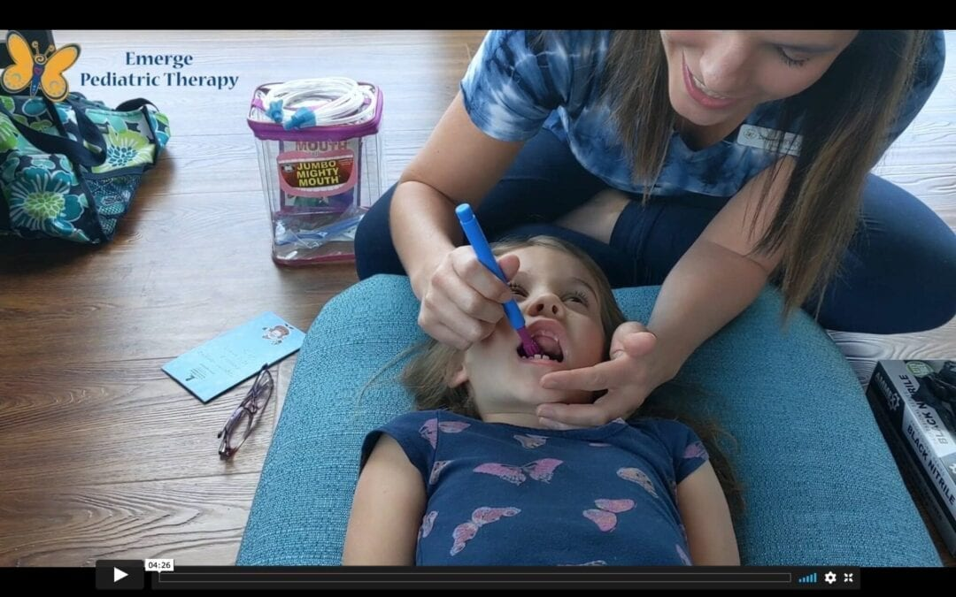 Prepping for a Frenectomy